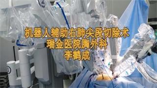 李鹤成:达芬奇右肺上叶尖段切除术