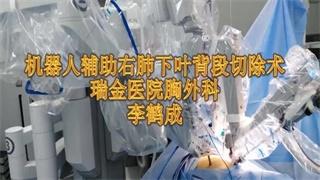 李鹤成:达芬奇右肺下叶背段切除术