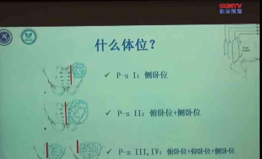 曲华毅:累及骶骨的骨盆肿瘤外科边界划分及重建方法的选择