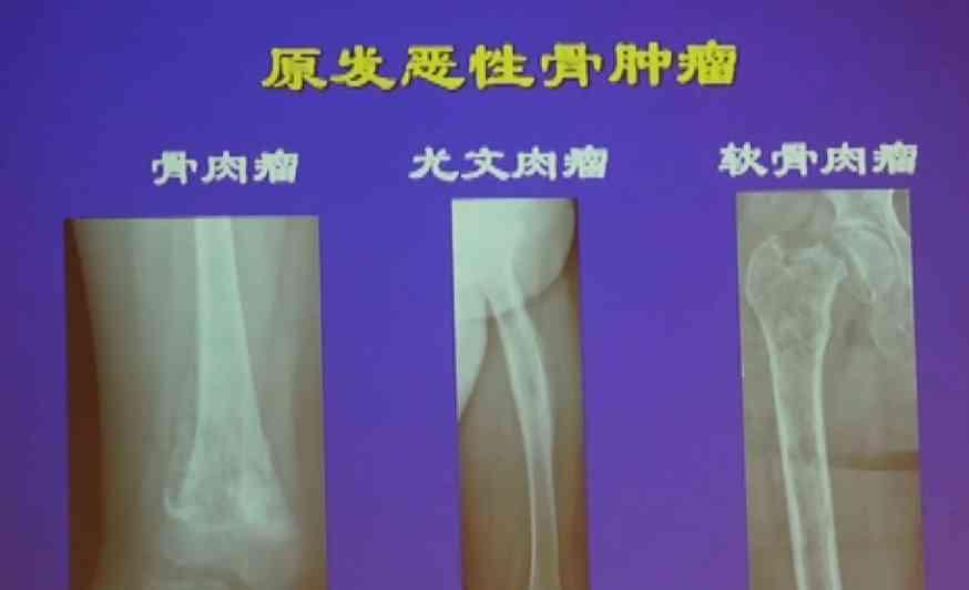 燕太强:肢体原发恶性骨肿瘤的切除原则