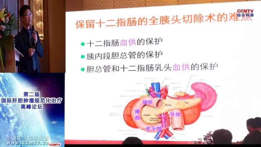 消化道疾病 外科讲坛 微创 闵军:腹腔镜保留十二指肠的全胰头切除术手术难点与对策