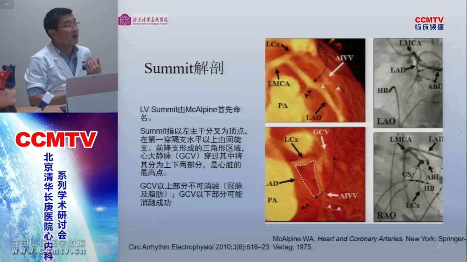 心血管疾病 诊疗策略 心律失常  刘元伟:左室summit起源室性心律失常(VA)-心电图特点与消融
