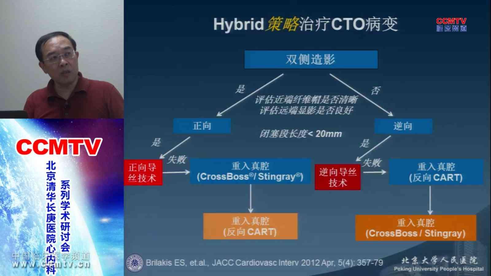 心血管疾病 局部治疗 CTO 王伟民:CTO的治疗新进展