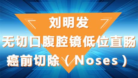 刘明发:无切口腹腔镜低位直肠癌前切除(Noses)