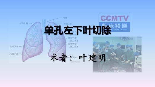 叶建明:单孔胸腔镜下左肺下叶切除术