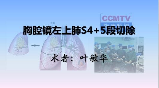 叶敏华:胸腔镜左上肺S4+5段切除