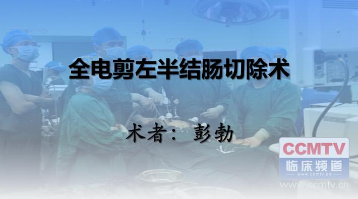 彭勃:全电剪左半结肠切除术