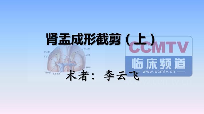李云飞:肾盂成形截剪(上)