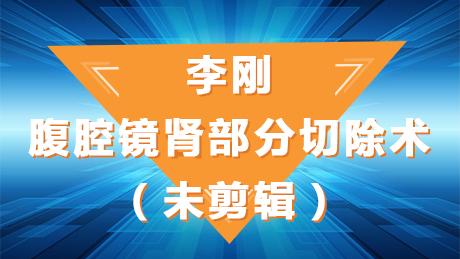 李刚:腹腔镜肾部分切除术(未剪辑)