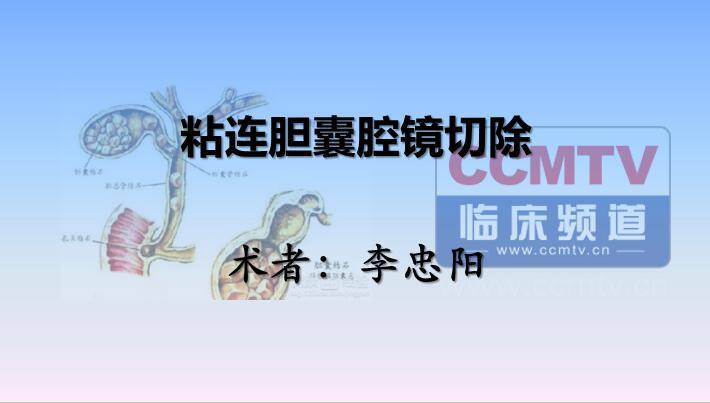 李忠阳:粘连胆囊腹腔镜切除