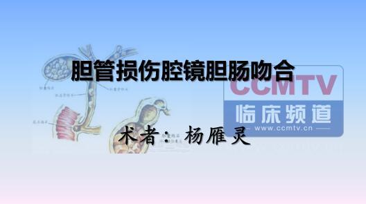 杨雁灵:胆管损伤腔镜胆肠吻合