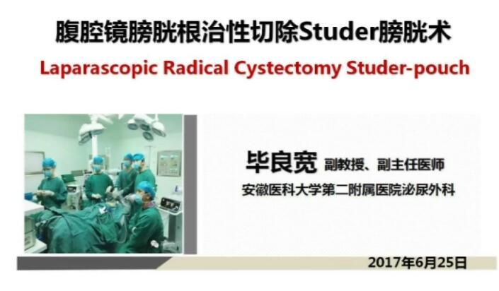膀胱癌 手术 微创 腹腔镜 毕良宽:腹腔镜膀胱根治性切除Studer膀胱术