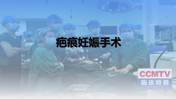 疤痕妊娠手术