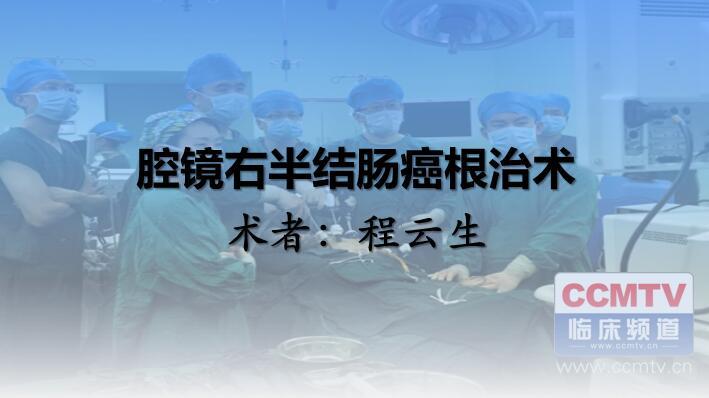程云生:腹腔镜右半结肠癌(D2)根治术