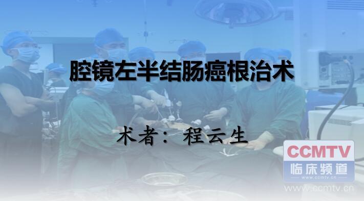 程云生:腹腔镜左半结肠癌根治术