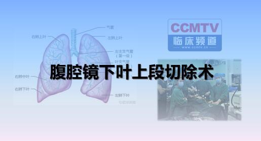 胸腔镜下叶上段切除术