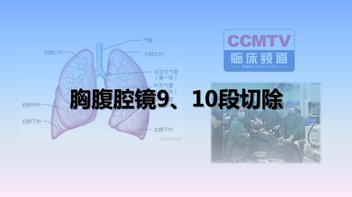 胸腹腔镜9、10段切除