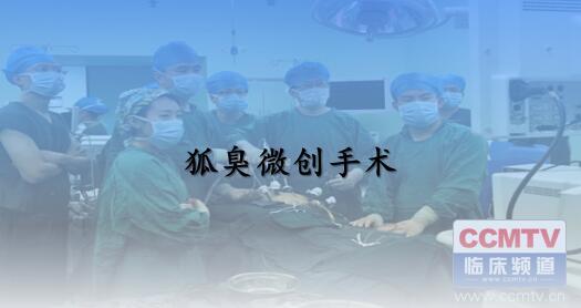 疾病 手术 微创 腋臭 腋臭微创手术