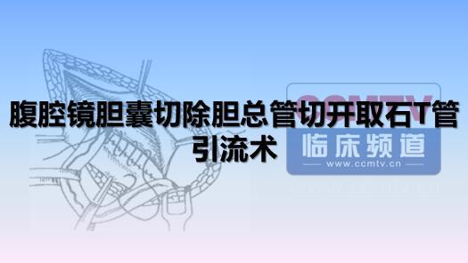 胆系疾病 手术 微创 腹腔镜 腹腔镜胆囊切除胆总管切开取石T管引流术