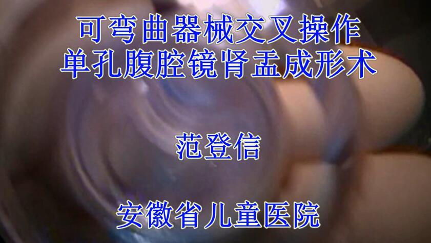 肾癌 手术 微创 腹腔镜 范登信:可弯曲器械交叉操作单孔腹腔镜肾盂成形术