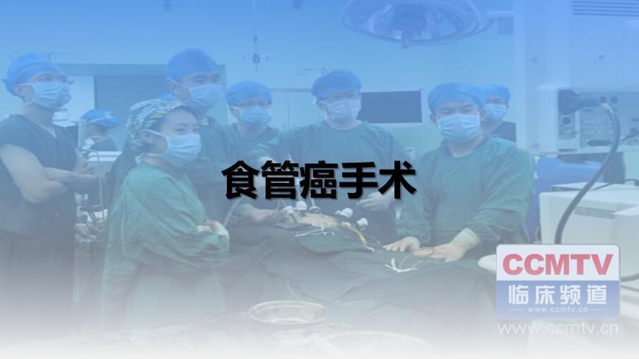 食管癌手术