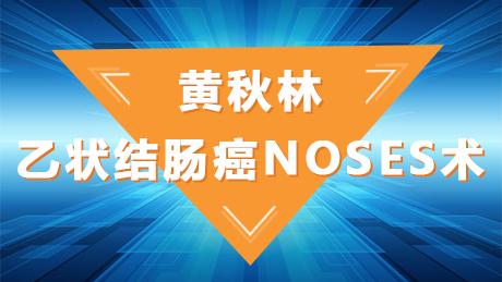 黄秋林:乙状结肠癌NOSES术