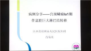 萧菊英:病例分享——宫颈鳞癌la1期伴盆腔巨大淋巴结转移