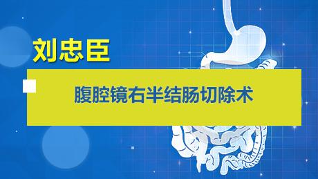 刘忠臣:腹腔镜右半结肠切除术