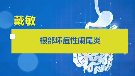 戴敏:根部坏疽性阑尾炎
