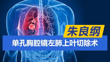 朱良纲:单孔胸腔镜左肺上叶切除术