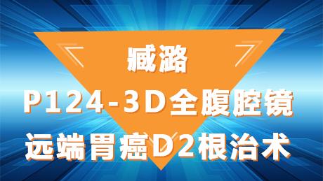臧潞:P124-3D全腹腔镜远端胃癌D2根治术