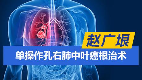 赵广垠:单操作孔右肺中叶癌根治术