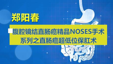 郑阳春:腹腔镜结直肠癌精品NOSES手术系列之直肠癌超低位保肛术
