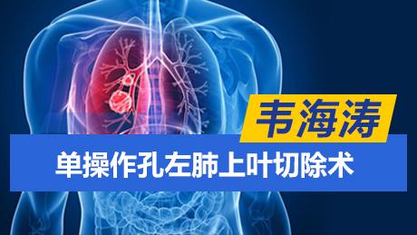 肺癌 手术 微创 胸腔镜 韦海涛:单操作孔左肺上叶切除术