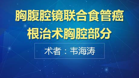 韦海涛:胸腹腔镜联合食管癌根治术胸腔部分