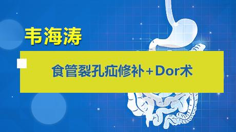 韦海涛:食管裂孔疝修补+Dor术