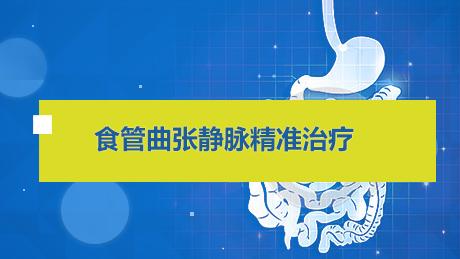 消化道疾病 手术 食管 食管曲张静脉精准治疗