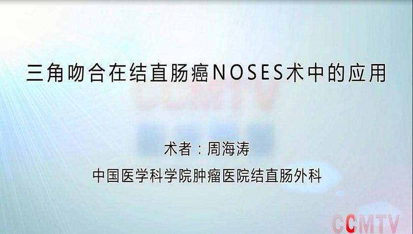 原汁原味看手术丨周海涛:三角吻合在结直肠癌NOSES术中的应用