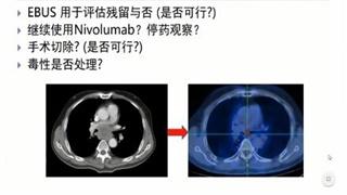 肺癌 病例讨论  在线MDT病例讨论:反复刺激性咳嗽半年余病例