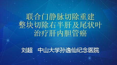 刘超:联合门静脉切除重建整块切除右半肝及尾状叶治疗肝内胆管癌