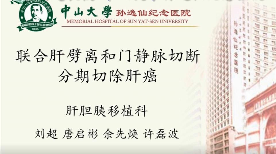 刘超:联合肝劈离和门静脉切断分期切除肝癌(ALPPS)