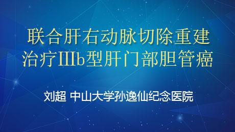 刘超:联合肝右动脉切除重建治疗Ⅲb型肝门部胆管癌