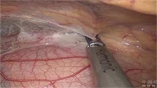 胸腺瘤 手术 微创 胸腔镜 汤骏:胸腺瘤三孔胸腔镜下切除术