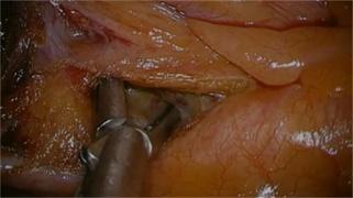 HIROYUKI-DAIKO:双侧喉返神经淋巴结清扫术