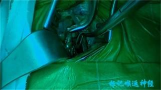 吴彬:纵隔腔镜联合腹腔镜食管癌根治术