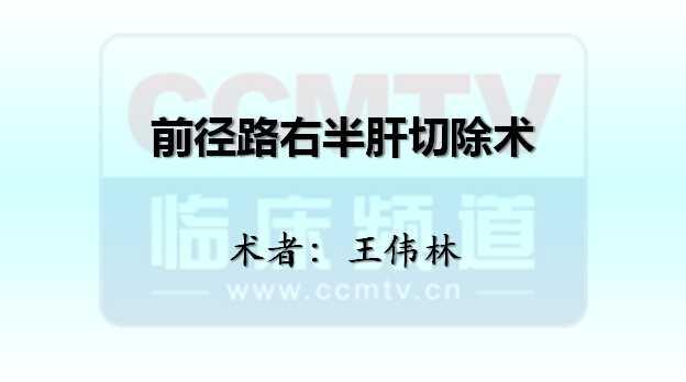 肝癌 手术 王伟林:前径路右半肝切除术