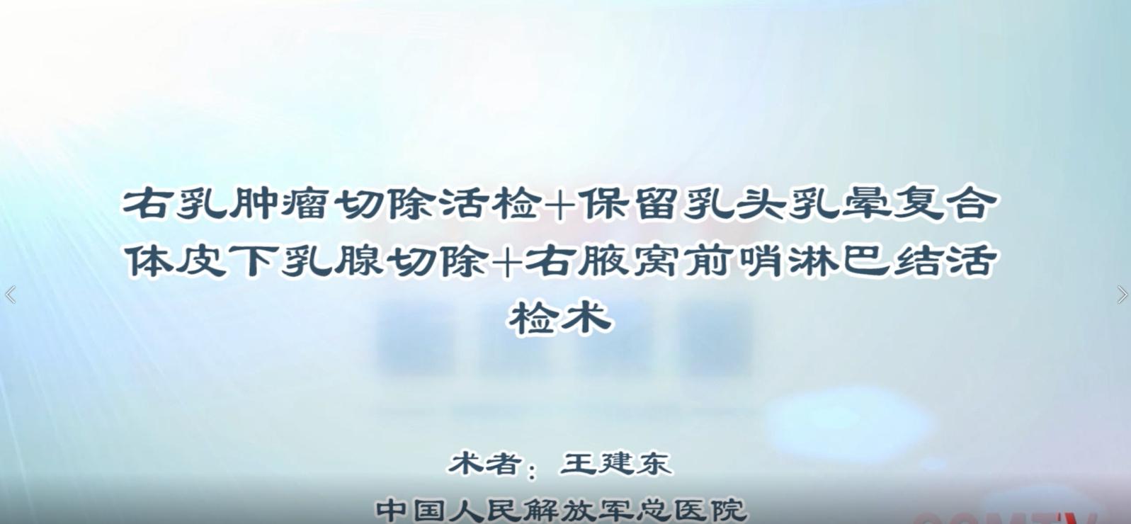 王建东:右乳肿瘤切除活检+保留乳头乳晕复合体皮下乳腺切除+前哨淋巴结活检术