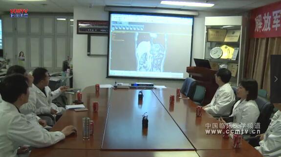 解放军总医院:胃低分化腺癌部分呈印戒细胞癌