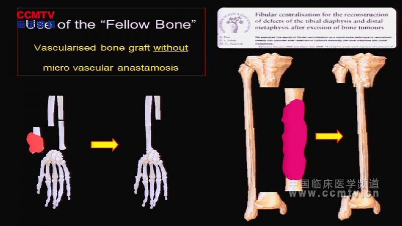 骨肿瘤 诊疗现状 A Puri:低成本保肢手术对于人口众多、资源匮乏境况的必要性