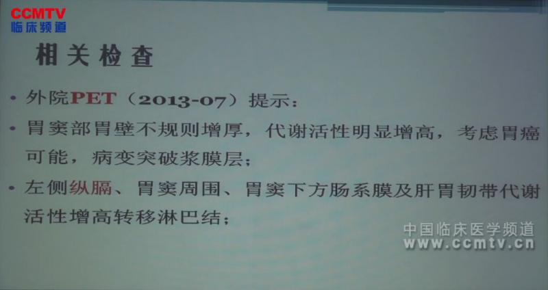 胃癌 病例讨论 胃低分化腺癌 MDT 北京协和:胃癌围手术期多学科病例讨论